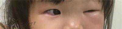 まぶたアレルギー反応